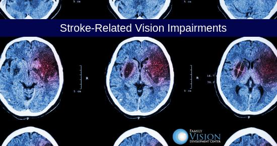 How Vision Therapy Can Treat Stroke-Related Vision Conditions