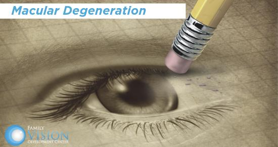 Macular Degeneration: Important Facts About the Leading Cause of Vision Loss