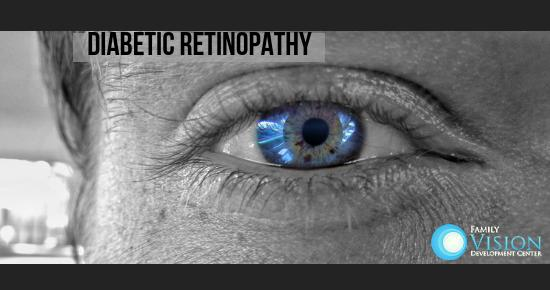 Diabetes Can Lead to Diabetic Retinopathy